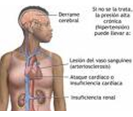 Factores ambientales y daños a la salud. Accidente cerebrovascular